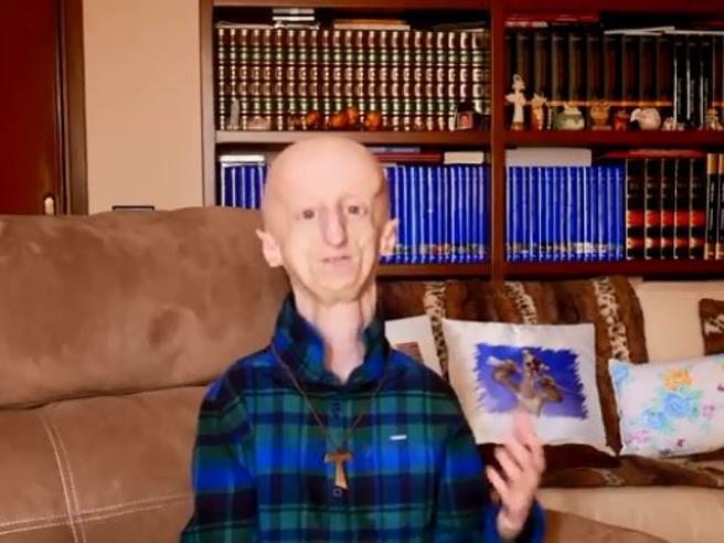Sammy Basso e la progeria, grazie al gene-editing la cura è più vicina
