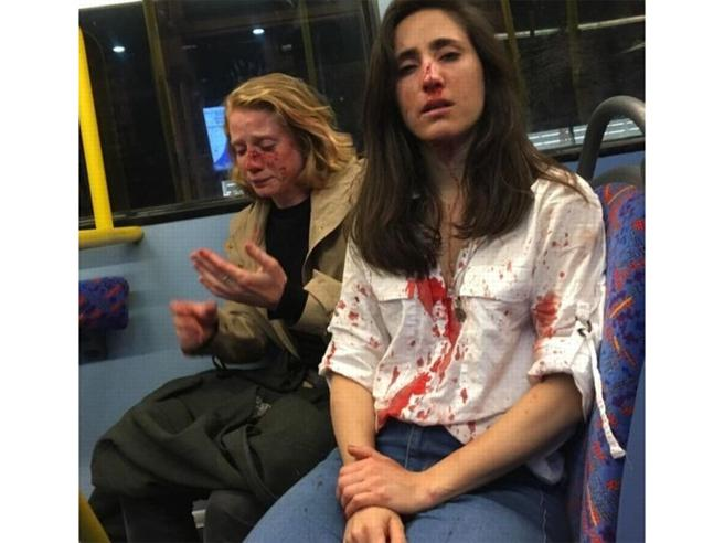 Coppia lesbica rifiuta di baciarsi su ordine dei teppisti. Picchiata a sangue sul bus a Londra