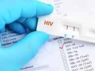 I check-point contro l'Aids in Italia