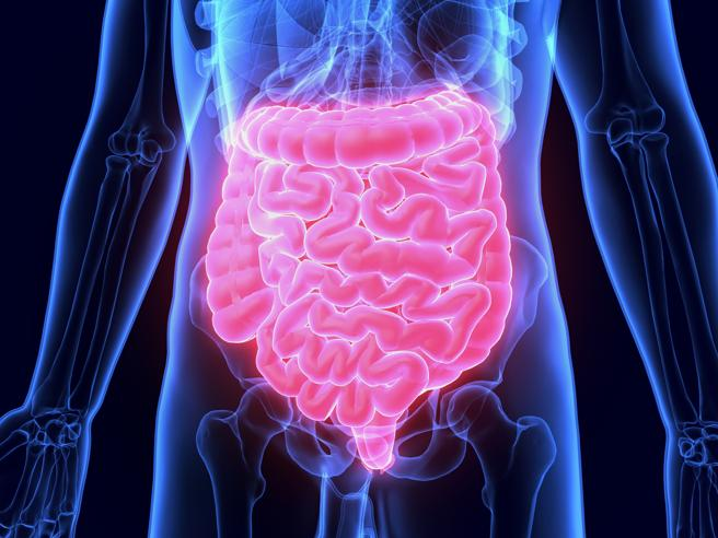 Diverticoli, piccole «sacche» nella parete intestinale: cosa succede se si infiammano