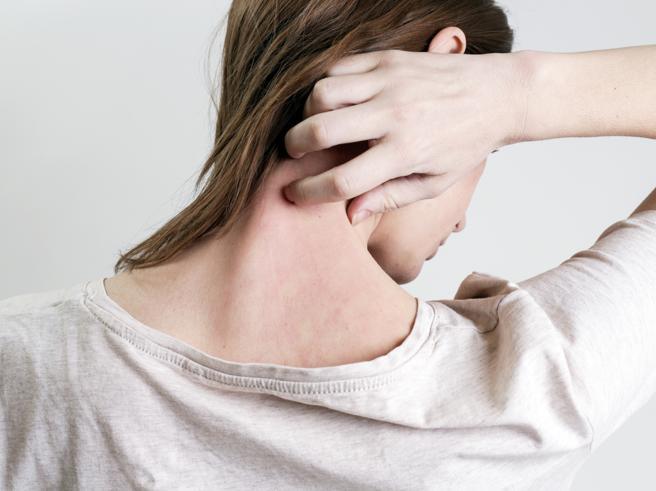 Quanto più la psoriasi è grave tanto più sale il rischiodi diabete di tipo 2