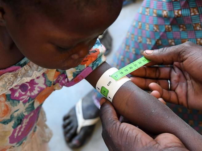 Unicef, nel mondo un bimbo su 3 (sotto i 5 anni) è denutrito o in sovrappeso