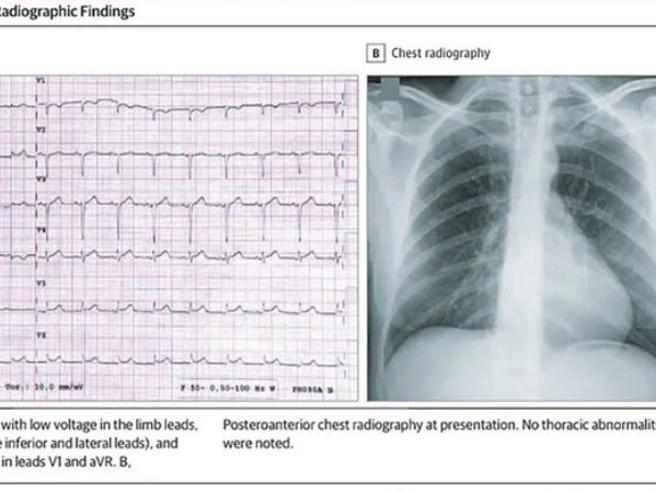 «Un attacco cardiaco? No, è il coronavirusche in alcuni casi colpisce il cuore»