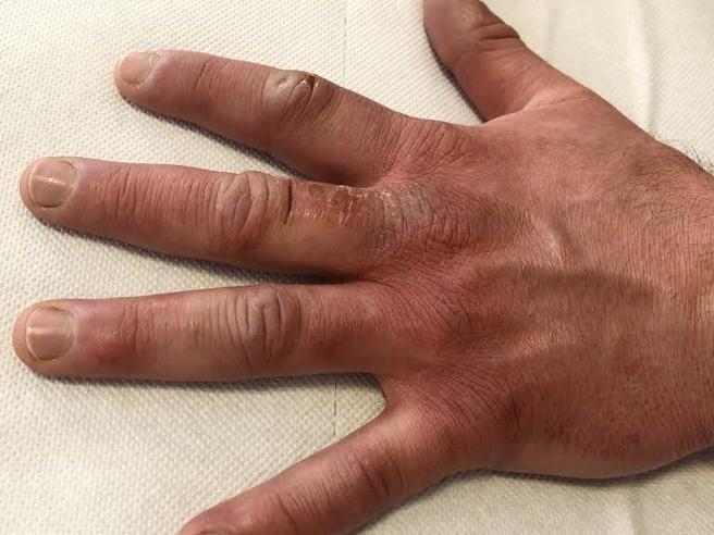 Tra i sintomi anche geloni a mani e piedi in bambini e adolescenti?