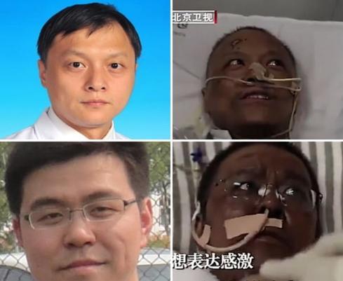 I medici cinesi si risvegliano dal coma con la pelle nera: ecco cosa è accaduto