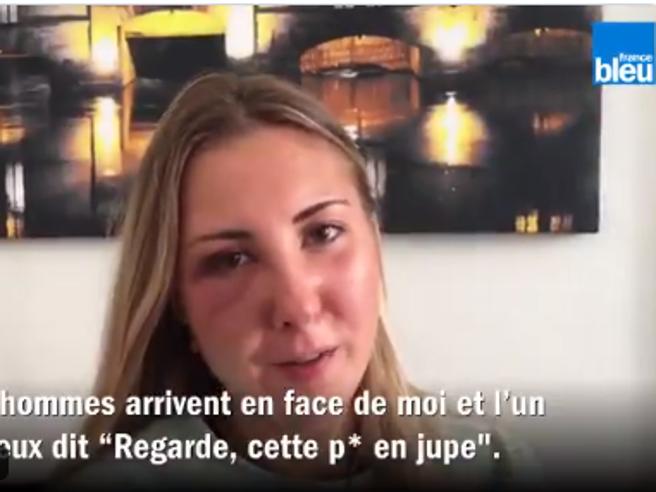Strasburgo, studentessa attaccata in strada perché indossava la gonna