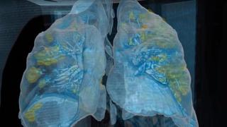 Ecco i polmoni di un paziente che ha contratto il coronavirus