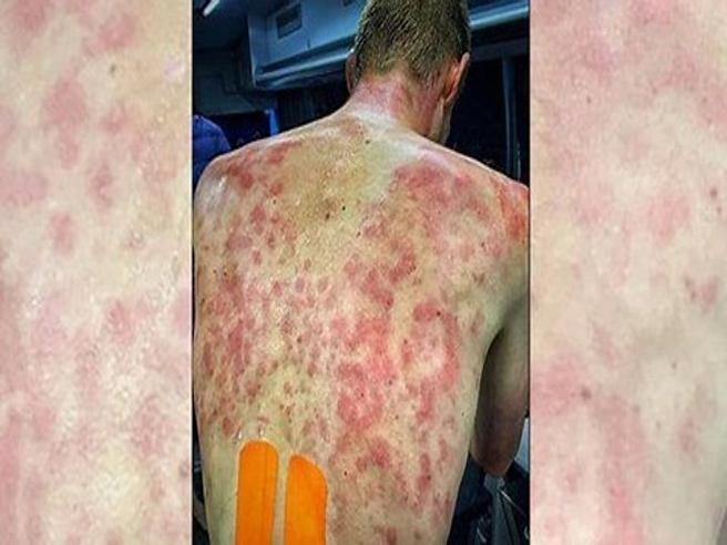 Ciclismo, intensa grandinata sul Giro del Delfinato: martoriate le schiene dei corridori