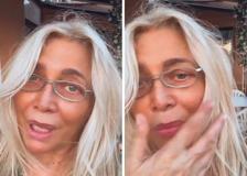 Mara Venier: «Parte del mio viso ha perso sensibilità, però torno a Domenica In»