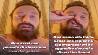 Francesco Facchinetti : «Io preso a pugni da Conor McGregor, qui siamo alla follia. Lui persona pericolosa»