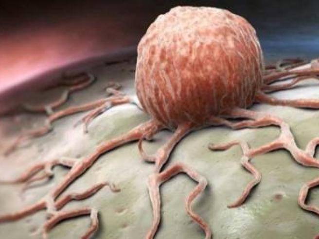 prostata tumore metastasi vertebral
