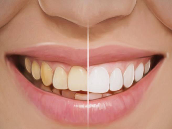 buona vendita enorme inventario salvare Come si fa lo sbiancamento dei denti? - Corriere.it